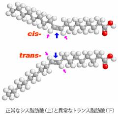 左は正常なシス脂肪酸(上)と異常なトランス脂肪酸(下)